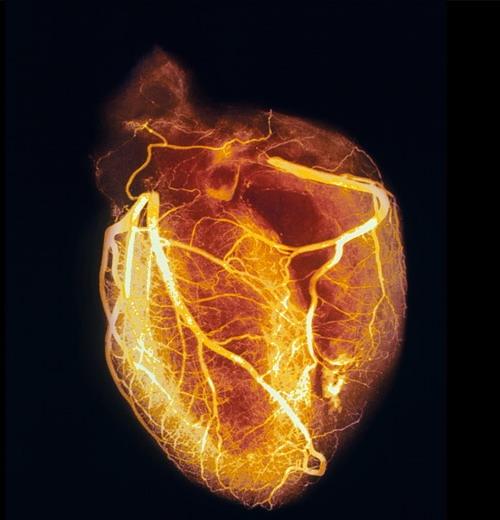 این عکس یه قلب انسان است